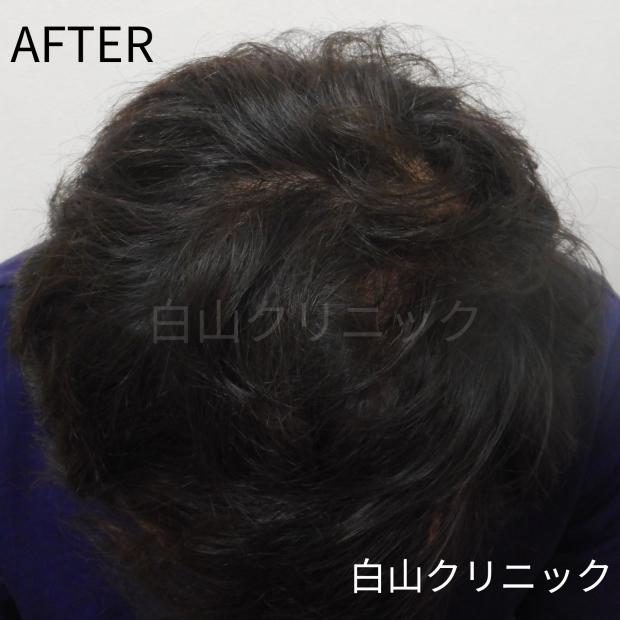 AGA(男性型脱毛症)治療 _a0206544_11110138.jpg