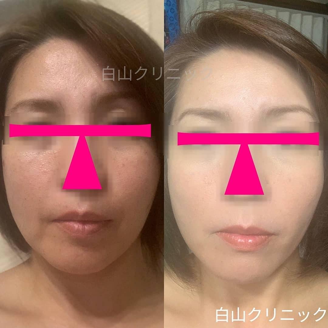 【幹細胞培養上清液】治療_a0206544_12421627.jpg