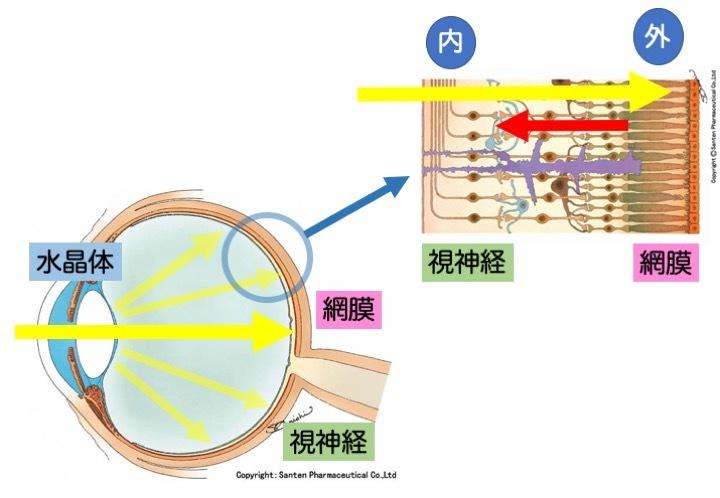 緑内障の誤解 その2「突然失明する」part 1_a0257968_16144692.jpeg