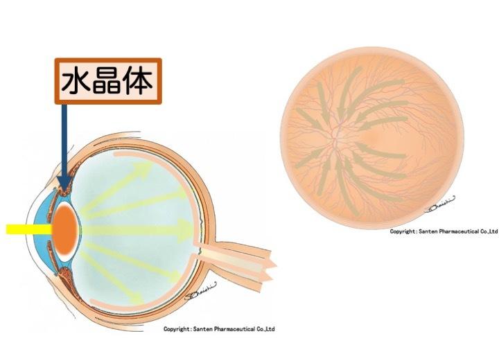緑内障の誤解 その2「突然失明する」part 1_a0257968_16240522.jpeg