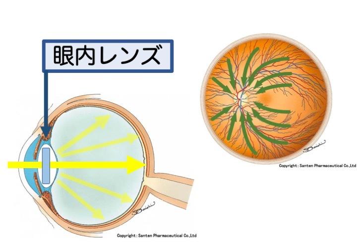 緑内障の誤解 その2「突然失明する」part 1_a0257968_16273819.jpeg