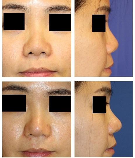 鼻尖縮小(クローズ法) 、 鼻中隔延長術 術後約半年再診時_d0092965_02171293.jpg