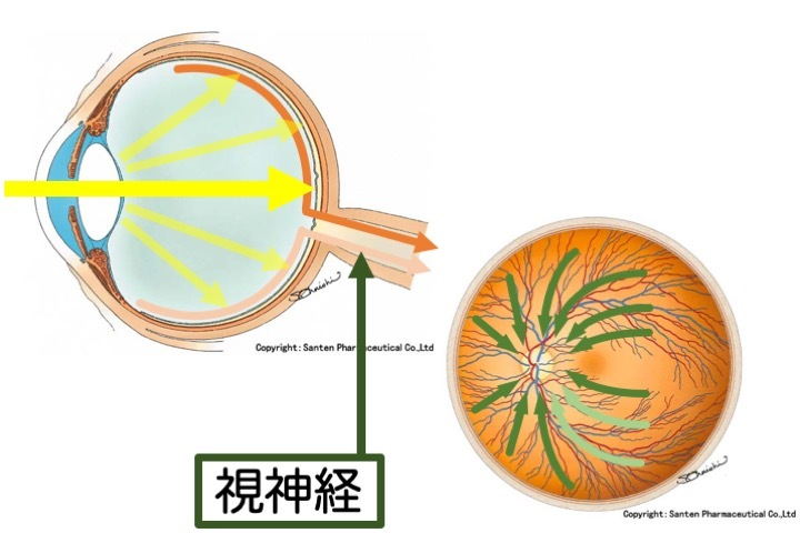 緑内障の誤解 その2「突然失明する」part 2_a0257968_11572690.jpeg
