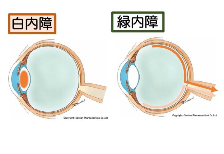 緑内障の誤解 その2「突然失明する」part 2_a0257968_11594710.jpeg