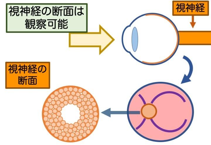 緑内障の誤解 その3「眼圧が高いと緑内障」 part 2_a0257968_16452842.jpeg