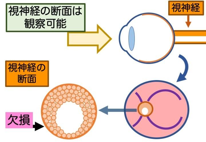 緑内障の誤解 その3「眼圧が高いと緑内障」 part 2_a0257968_16470792.jpeg