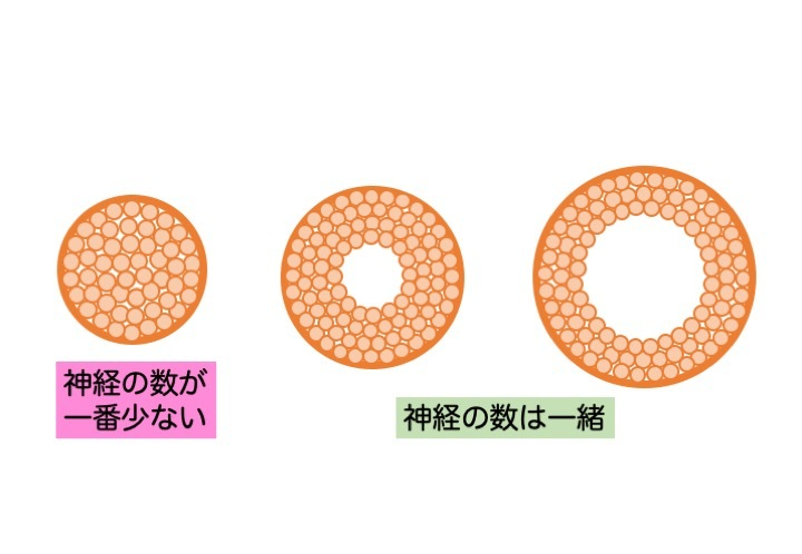 緑内障の誤解 その3「眼圧が高いと緑内障」 part 2_a0257968_16483182.jpeg