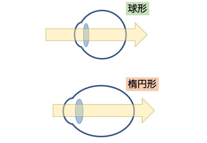 緑内障の誤解 その3「眼圧が高いと緑内障」 part 2_a0257968_16561984.jpeg