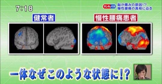 「痛み行動」極端なほど痛みは強く、心理的要素の関与が強い_b0052170_02295020.jpeg