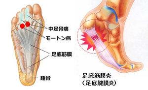 足底筋膜炎の治療の仕上げは小野川で温泉療法_c0075701_22424331.jpg