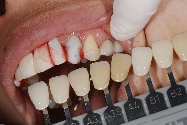 歯科技工 一般の方にはわかりずらいとは思いますが_a0071724_14140882.jpg