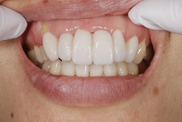歯科技工 一般の方にはわかりずらいとは思いますが_a0071724_14141835.jpg