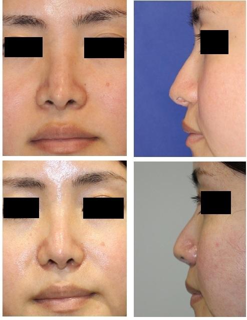 前医鼻中隔延長術術後修正術、 小鼻縮小術、鼻孔形態修正術_d0092965_01282244.jpg