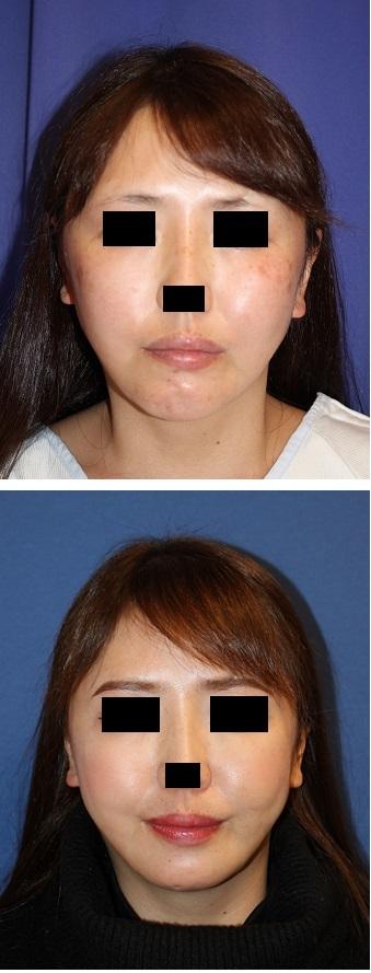 顎先骨切術、 顎先梅干し(皺)に対する筋肉処理_d0092965_03160856.jpg