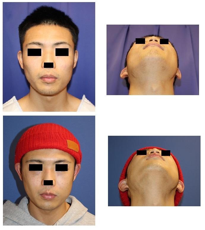 頬骨V字骨切術   術後約半年再診時_d0092965_04402236.jpg