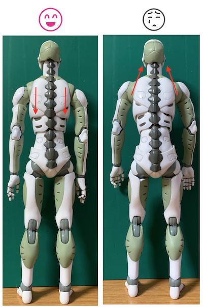 ぎっくり腰予防には、バンザイするとよい? 〜ある日の施術より〜_e0073240_14480683.jpg