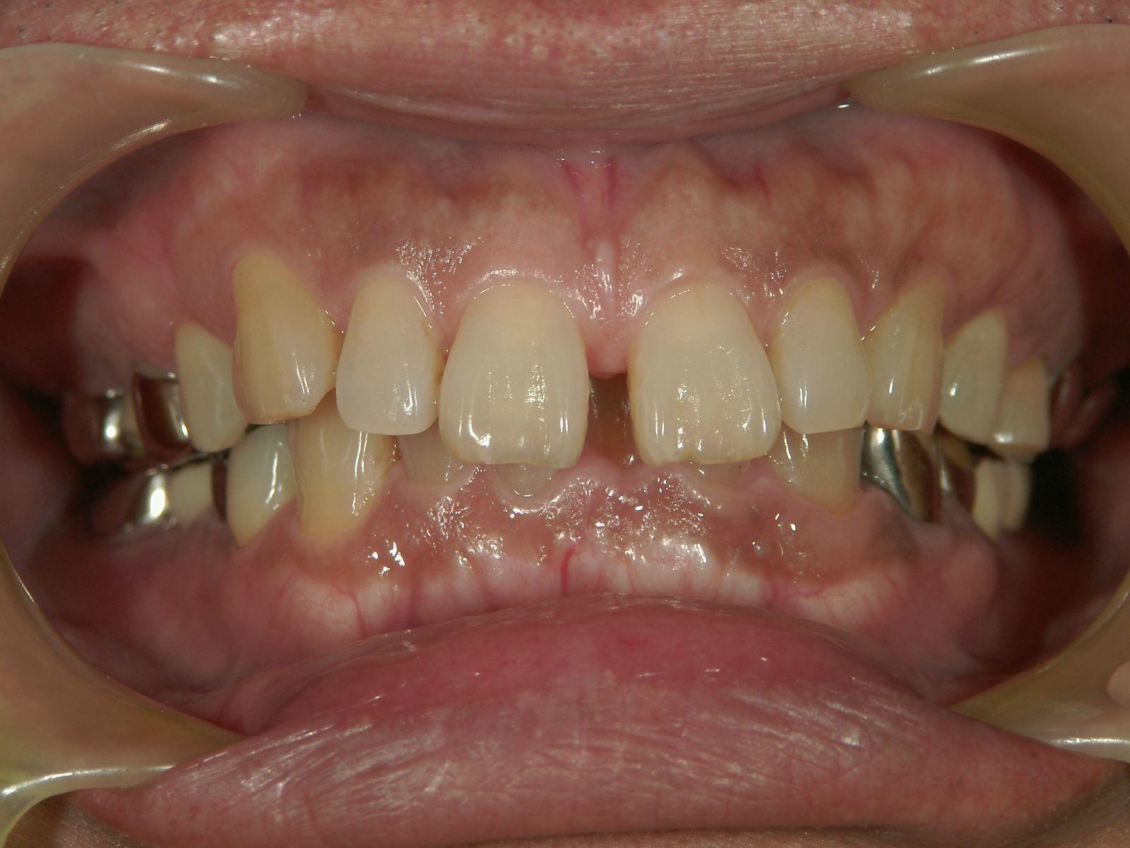 「メタルフリー」へと続く道・Part13いわゆる「スキっ歯」のダイレクトボンディング_b0119466_21413812.jpg