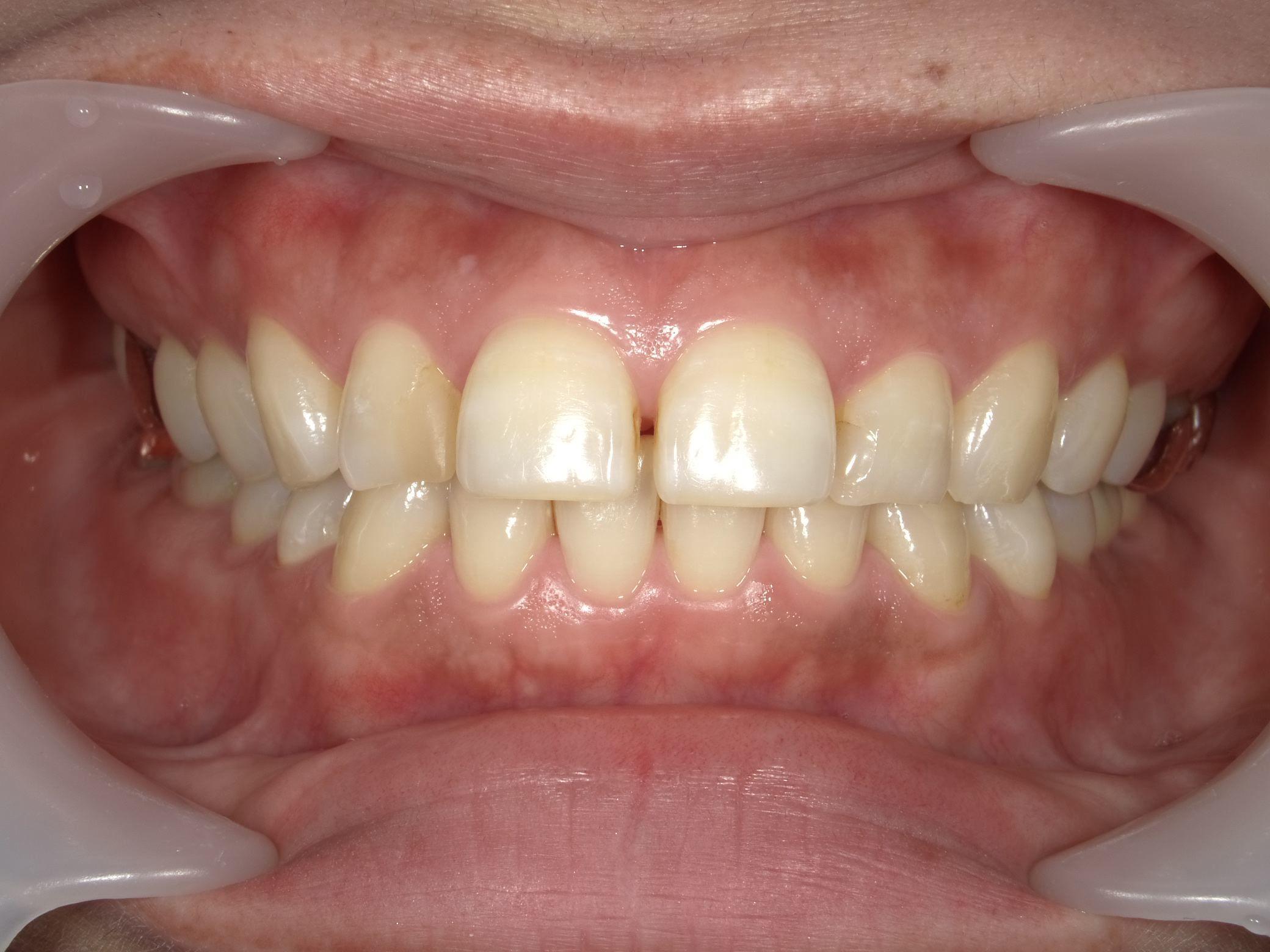 「メタルフリー」へと続く道・Part13いわゆる「スキっ歯」のダイレクトボンディング_b0119466_22375419.jpg