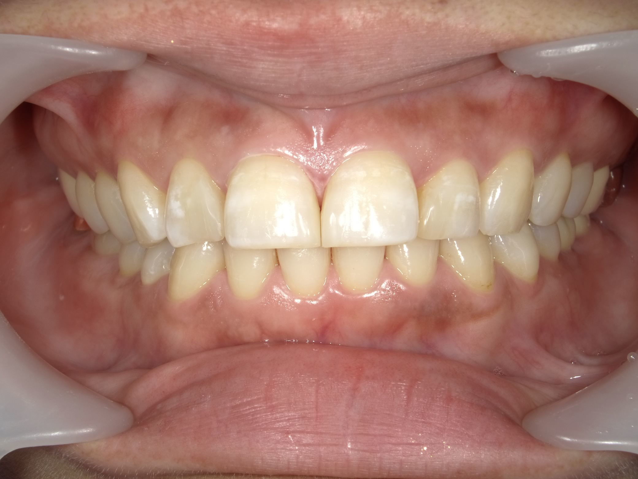 「メタルフリー」へと続く道・Part13いわゆる「スキっ歯」のダイレクトボンディング_b0119466_22414386.jpg