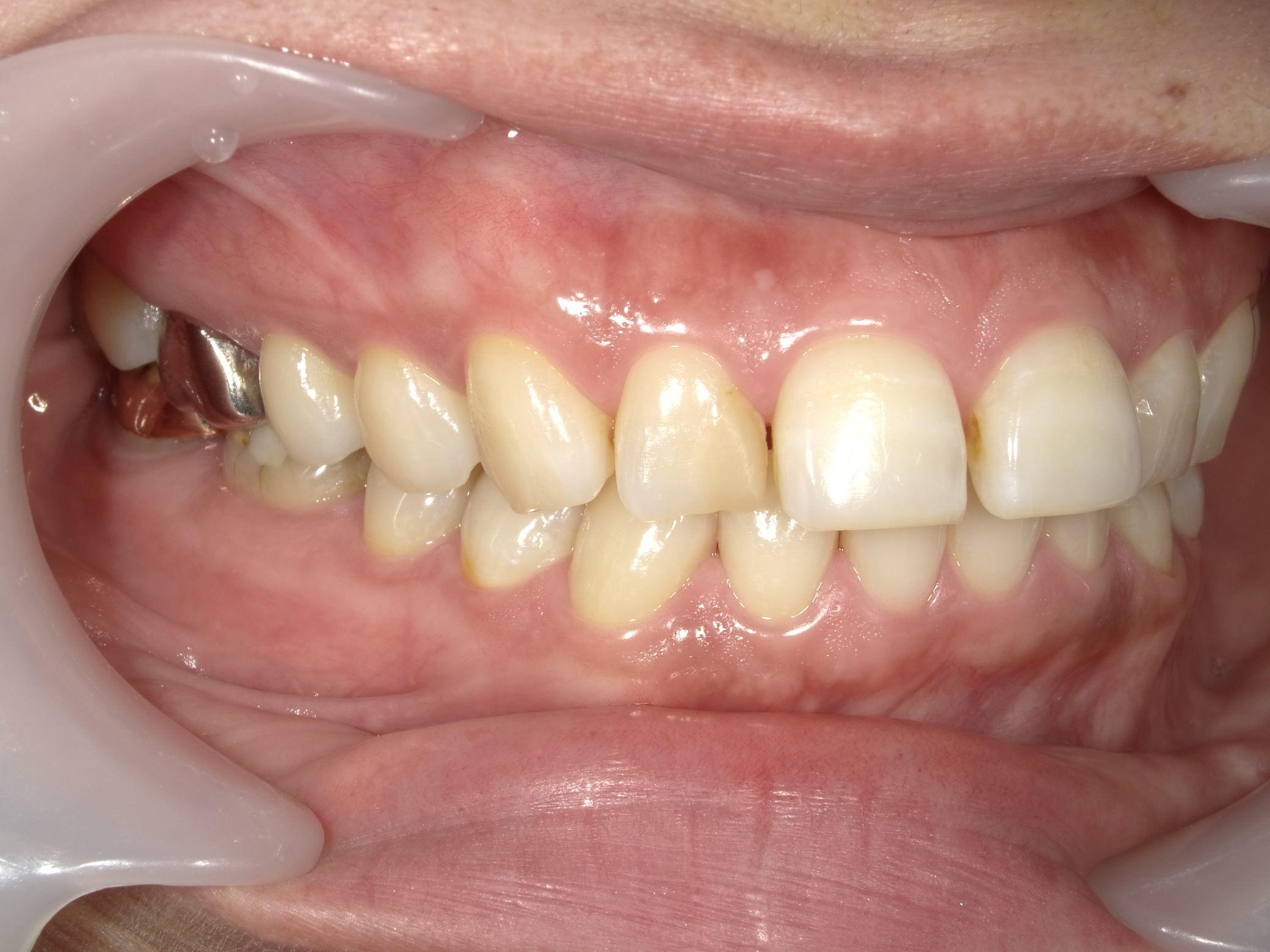 「メタルフリー」へと続く道・Part13いわゆる「スキっ歯」のダイレクトボンディング_b0119466_22463558.jpg