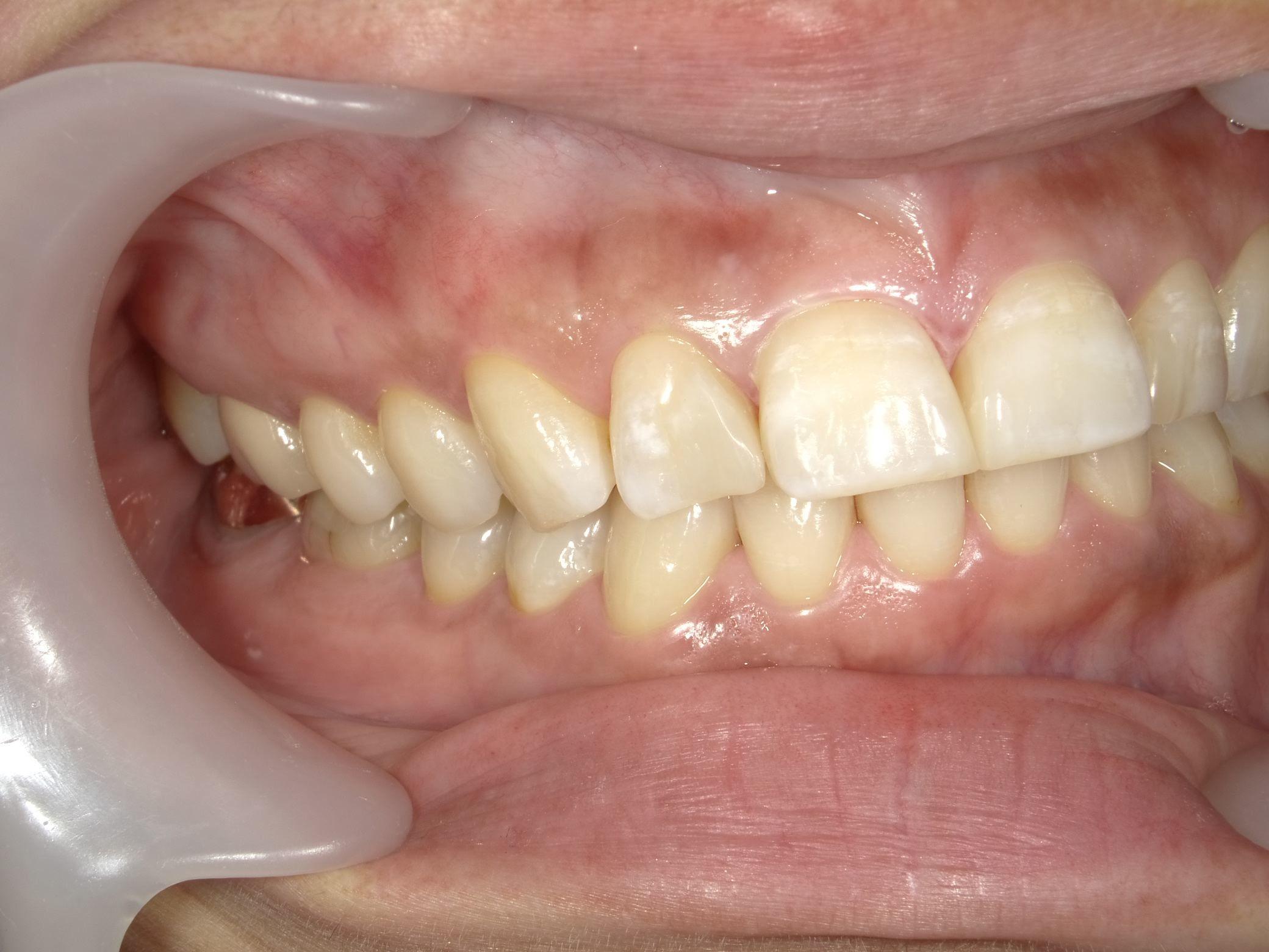 「メタルフリー」へと続く道・Part13いわゆる「スキっ歯」のダイレクトボンディング_b0119466_22472191.jpg