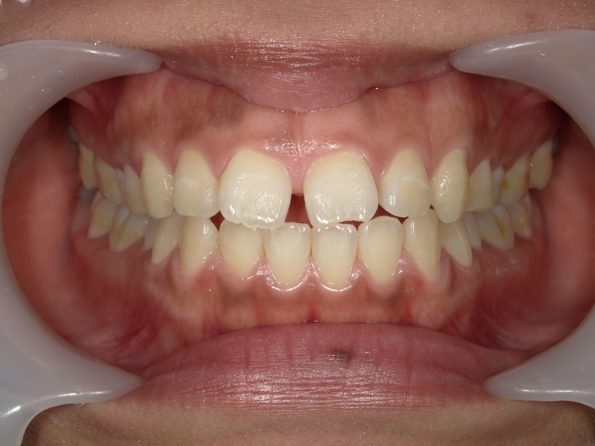 「メタルフリー」へと続く道・Part13いわゆる「スキっ歯」のダイレクトボンディング_b0119466_22565367.jpg