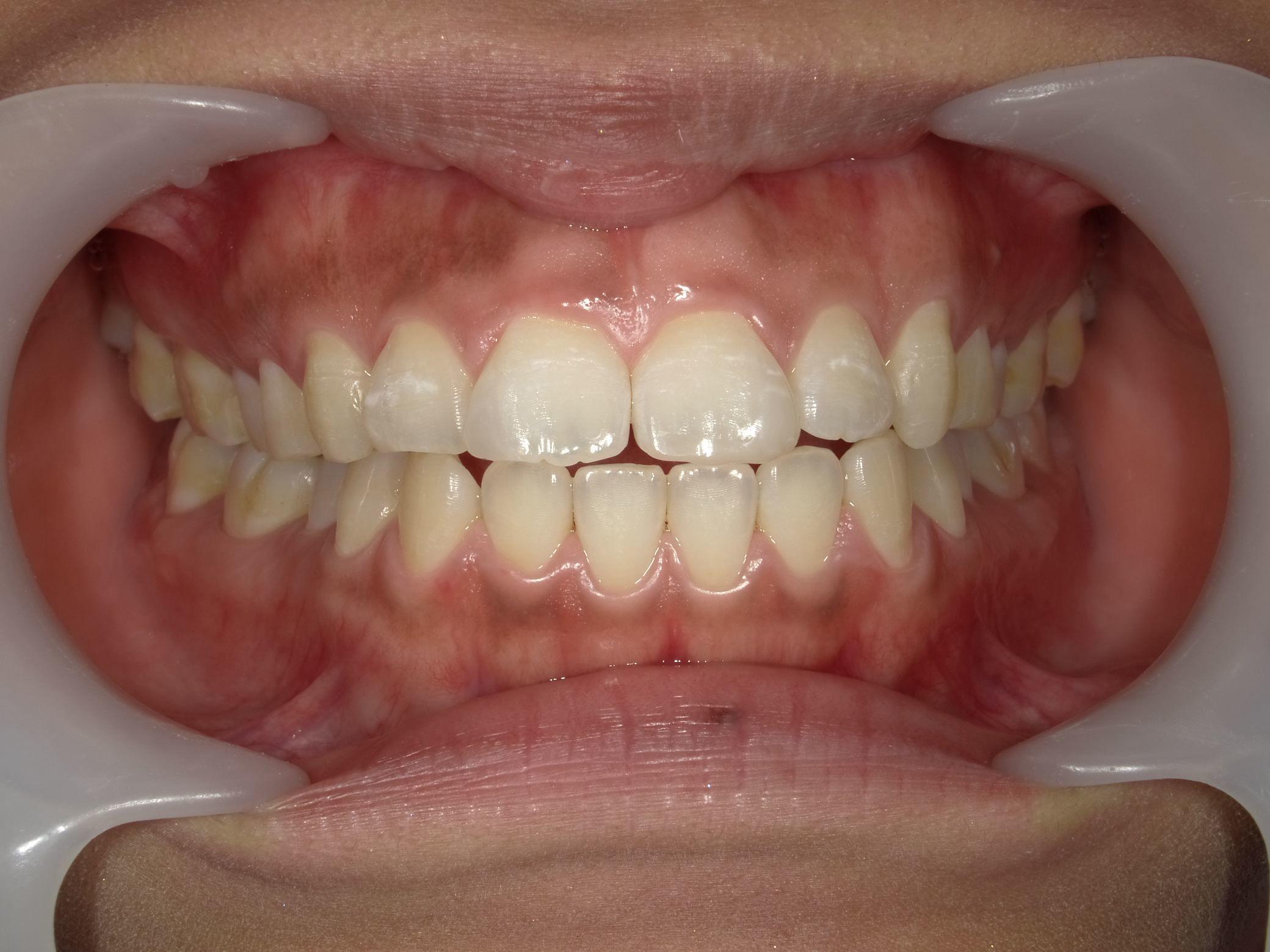 「メタルフリー」へと続く道・Part13いわゆる「スキっ歯」のダイレクトボンディング_b0119466_22590672.jpg
