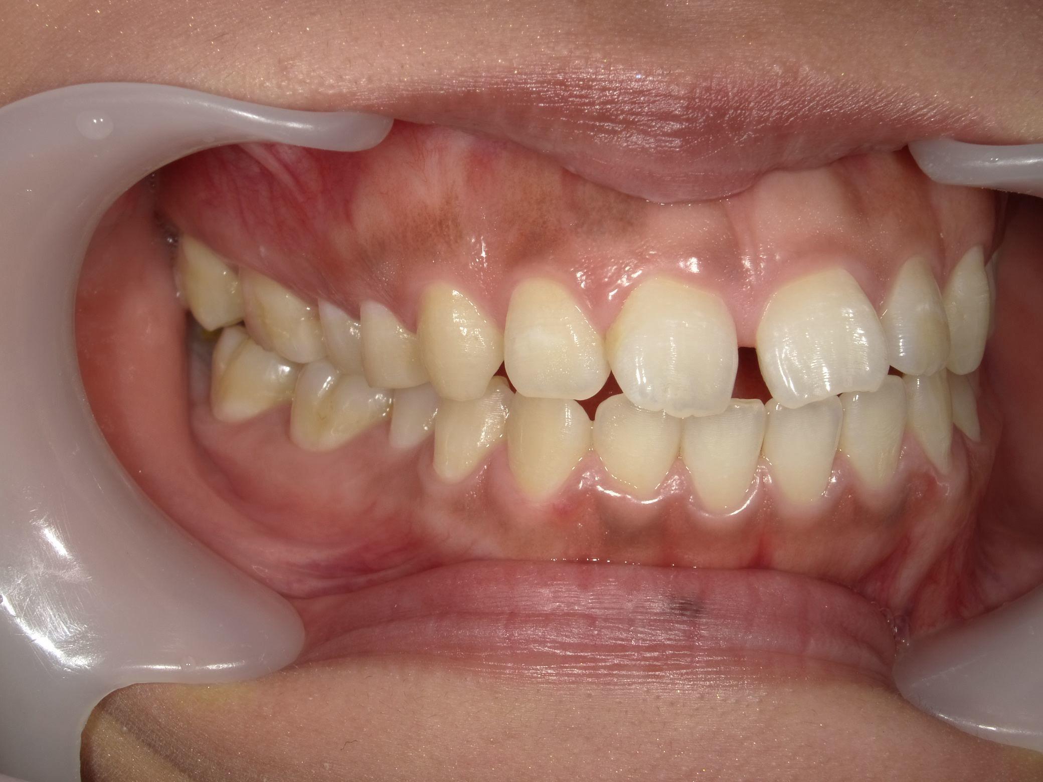 「メタルフリー」へと続く道・Part13いわゆる「スキっ歯」のダイレクトボンディング_b0119466_23554291.jpg