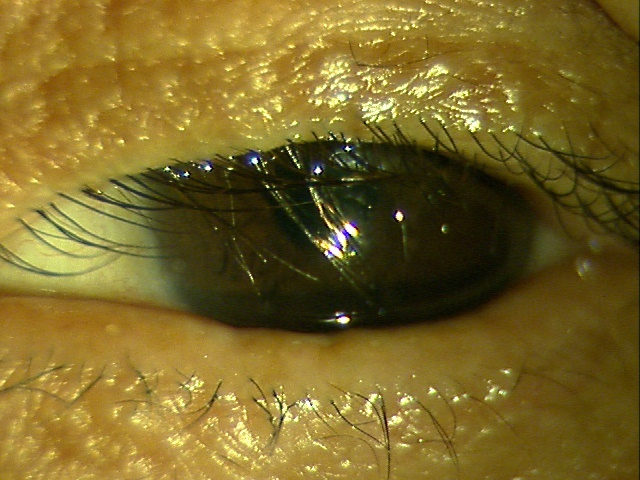 睫毛乱生:眼科医が見ているものシリーズ その6 (1189)_f0088231_13452032.jpg