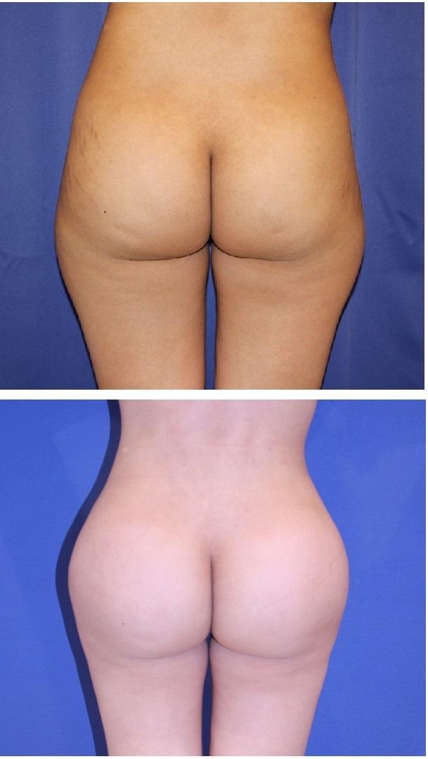 臀部脂肪移植、肉割れ治療(炭酸ガスレーザー+メディジェット+炭酸ガス注射の複合治療)_d0092965_01573286.jpg
