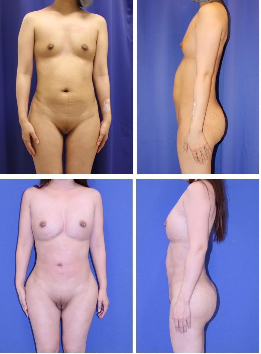 乳房脂肪移植(1年に三回)+全身美的形成術 、ベイザー腹部、太もも脂肪吸引、大陰唇脂肪移植、乳頭ピアス 、術後約半年再診時_d0092965_02213542.jpg