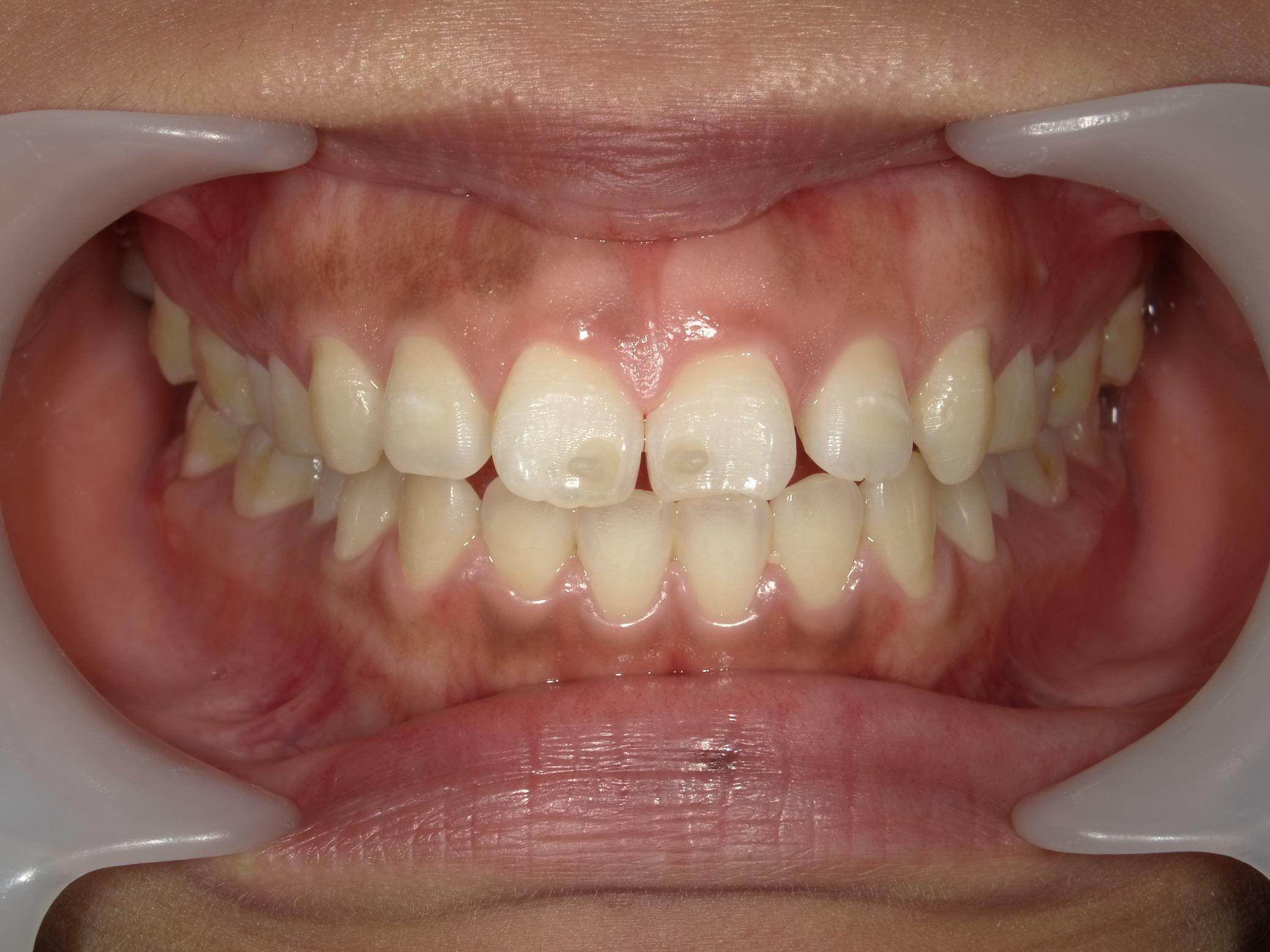 「メタルフリー」へと続く道・Part13いわゆる「スキっ歯」のダイレクトボンディング_b0119466_00090162.jpg