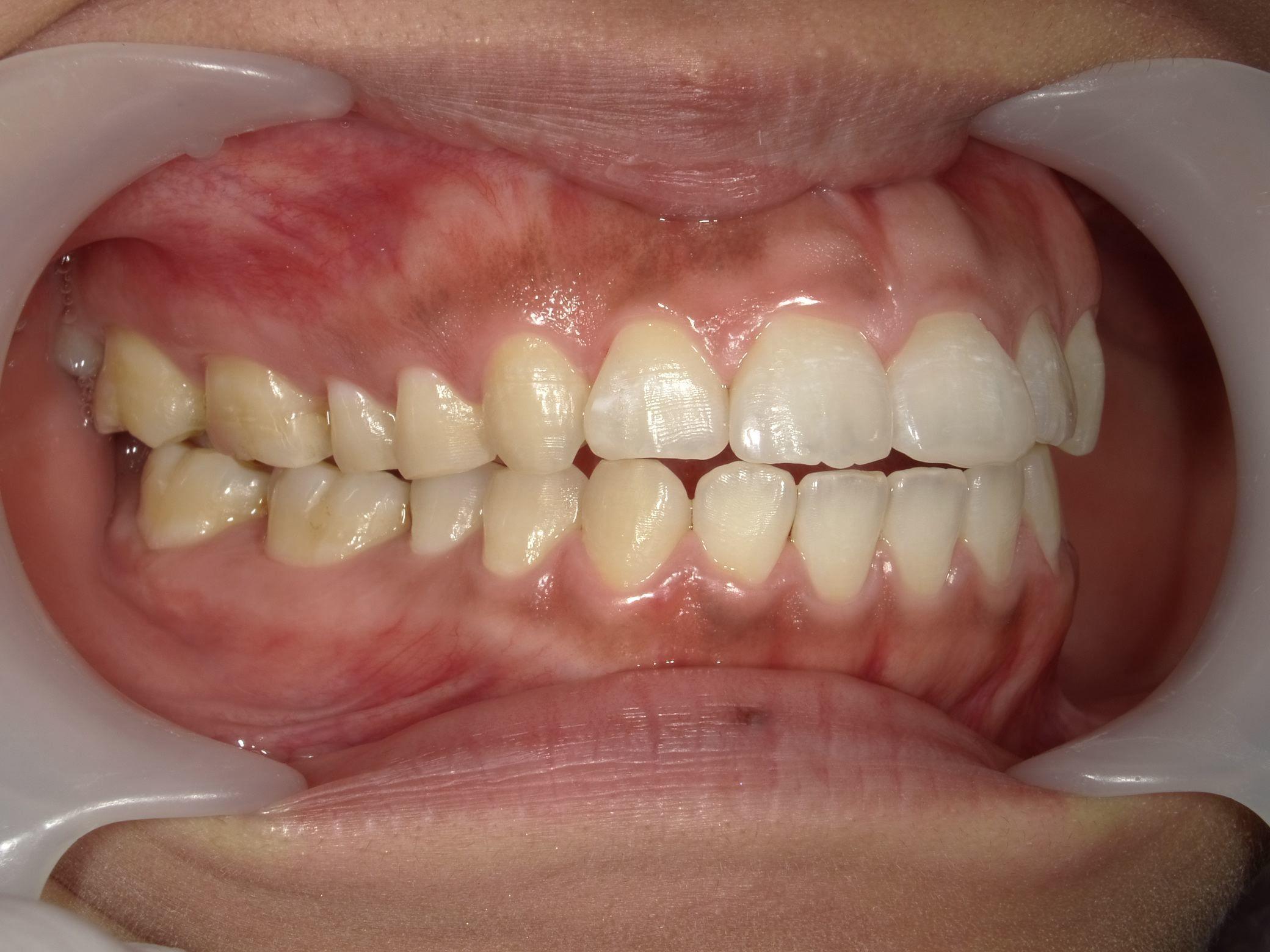 「メタルフリー」へと続く道・Part13いわゆる「スキっ歯」のダイレクトボンディング_b0119466_00114041.jpg
