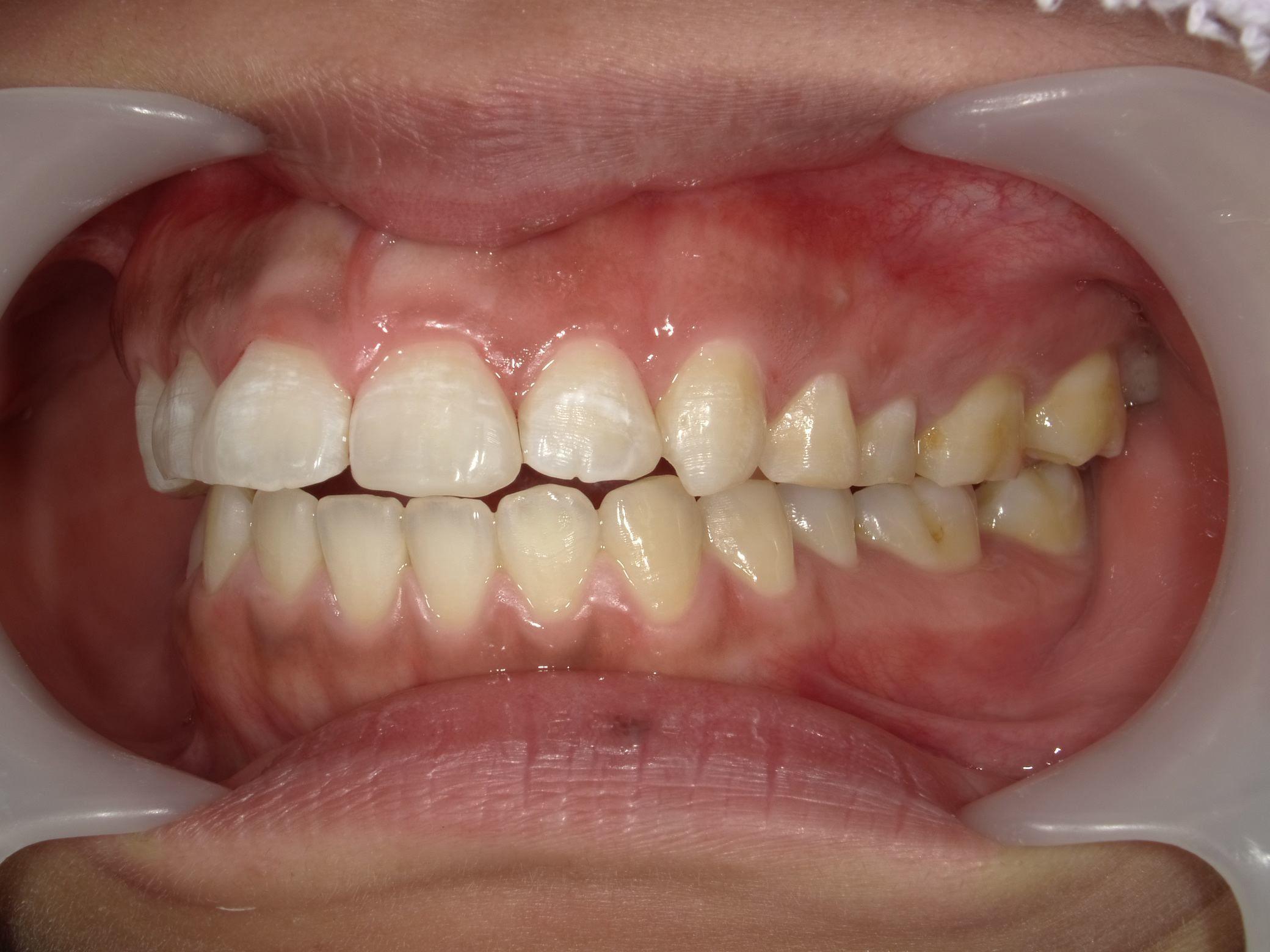 「メタルフリー」へと続く道・Part13いわゆる「スキっ歯」のダイレクトボンディング_b0119466_00120494.jpg