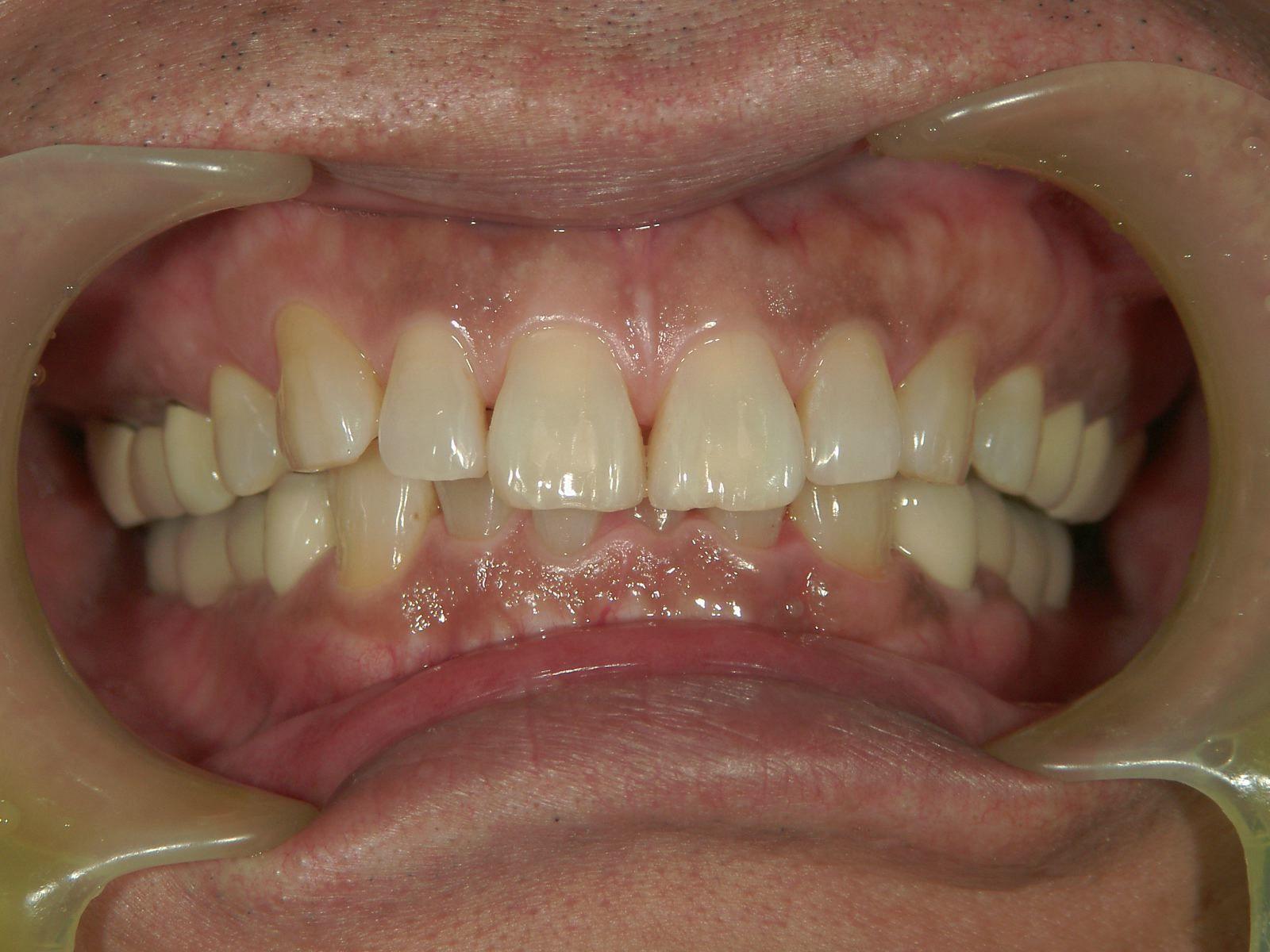 「メタルフリー」へと続く道・Part13いわゆる「スキっ歯」のダイレクトボンディング_b0119466_00244443.jpg
