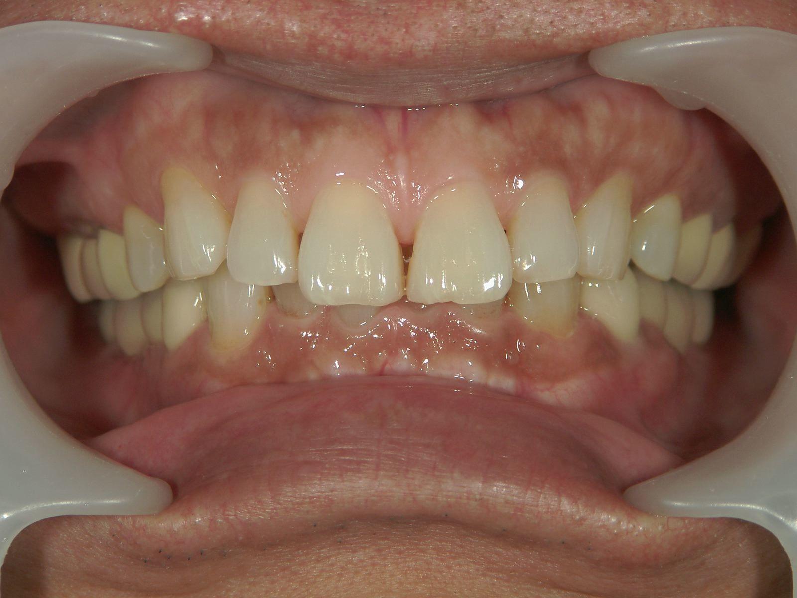 「メタルフリー」へと続く道・Part13いわゆる「スキっ歯」のダイレクトボンディング_b0119466_00250486.jpg