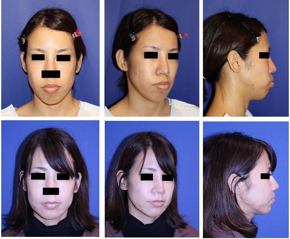 口元をひっこめ、中顔面を短縮する : 多分割LeFort一型骨切術+SSRO (中顔面短縮術+上顎セットバック) 術後3か月_d0092965_03032965.jpg