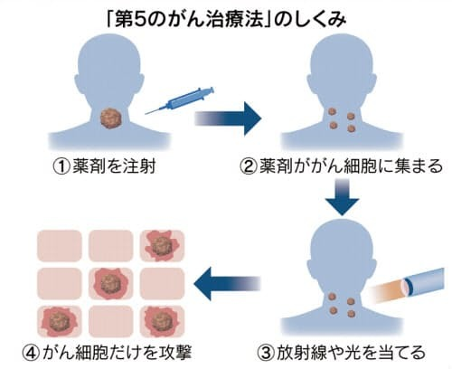 がん治療に第5の道 _c0219358_23462676.jpg