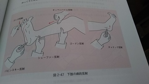 下肢の病的反射の語呂合わせ_f0228680_10534130.jpg
