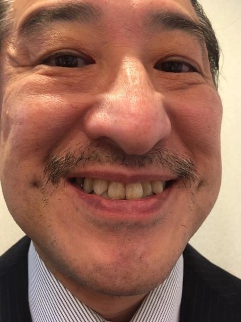 ビアード・ダンディ(1/20)_c0200361_18254525.jpg