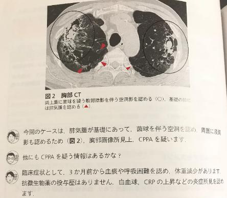 本の紹介:レジデントのための 呼吸器診療最適解_e0156318_1002869.png