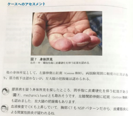 本の紹介:レジデントのための 呼吸器診療最適解_e0156318_1004011.png