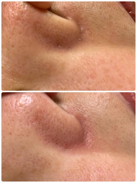 鼻の毛穴の皮脂やニキビをキレイにするにはフェイシャルで。あとは糖質の摂り過ぎね_f0135940_19043124.jpg