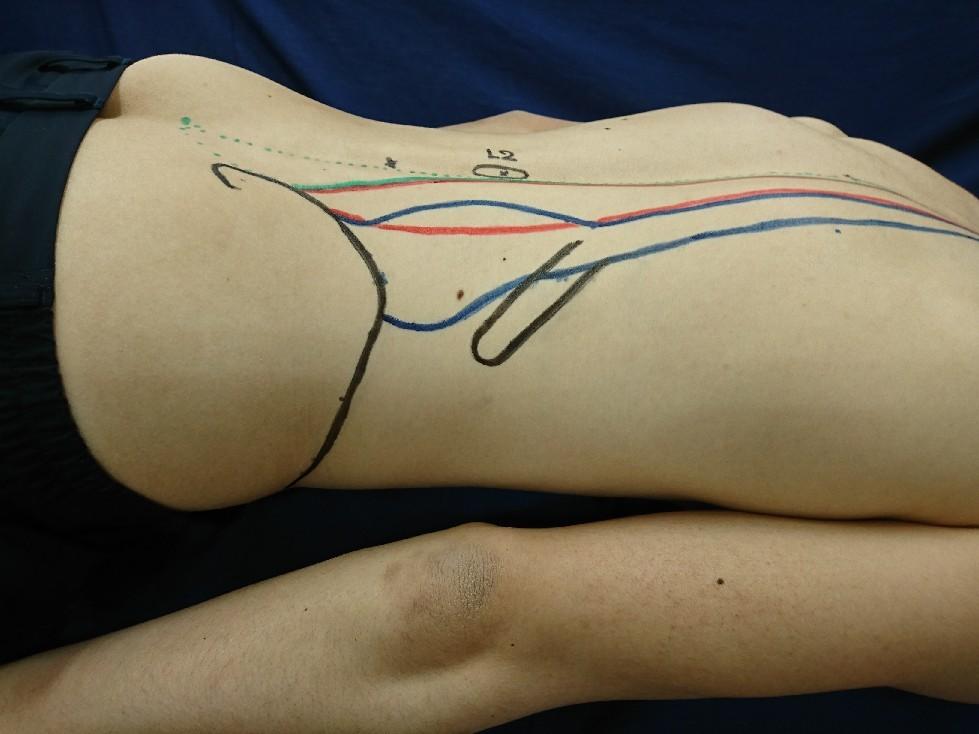 腸肋筋の触察方法_b0329026_21553343.jpg