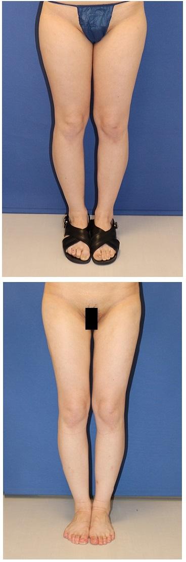 ベイザー(超音波脂肪破砕装置)併用 太もも全周脂肪吸引 術後約半年_d0092965_03221083.jpg