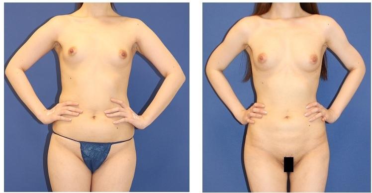 二の腕、腹部、腰回り脂肪吸引 + 脂肪移植豊胸 術後約半年_d0092965_03384745.jpg