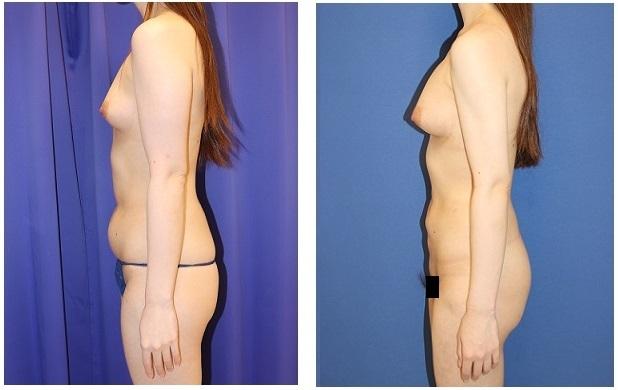 二の腕、腹部、腰回り脂肪吸引 + 脂肪移植豊胸 術後約半年_d0092965_03391029.jpg