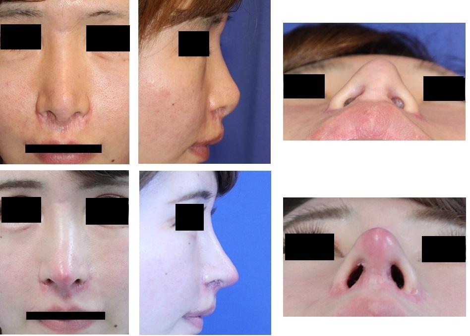 他院鼻術後変形 に対する 変形修正治療 (鼻中隔延長術、鼻尖縮小術、鼻尖部異物除去(メッシュボール除去)、鼻孔形態修正術)_d0092965_04004805.jpg