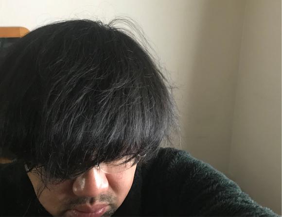 シゲさんの頭髪問題_b0199097_18203171.jpg