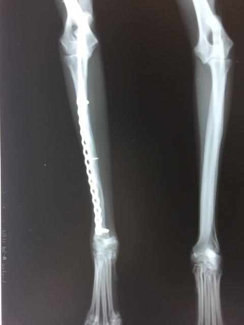 骨折手術(癒合不全、変形癒合からの整復手術)_b0350282_21333966.jpg